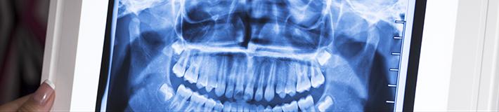 imaginologia e radiologia odontolgica